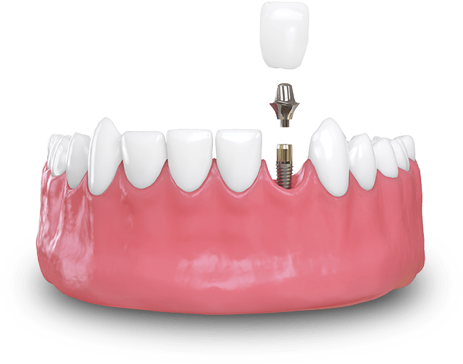 implant dentistry in Sun City